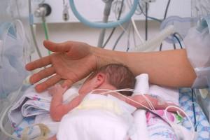 Недоношенный ребенок в инкубаторе (фото)